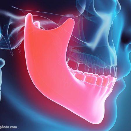 ihre-zahnarztpraxis-stuttgart-knochenaufbau