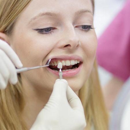 Ästhetische Zahnbehandlung in Ihrer Zahnarztpraxis Stuttgart