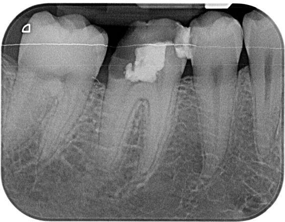 Endodontie - Behandlung in Ihrer Zahnarztpraxis Stuttgart
